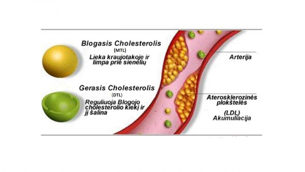 didelis cholesterolio kiekis ir širdies sveikata